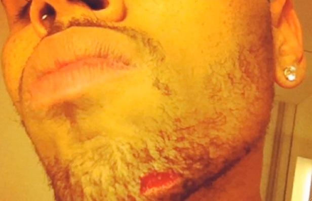 Chris Brown chin