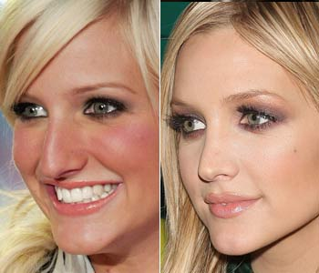 10 Celebs Who Completely Changed Their Faces