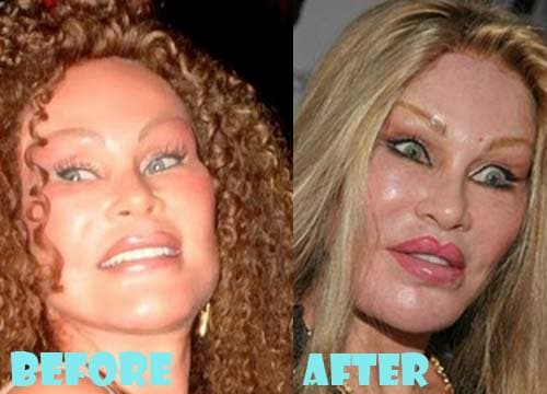 Jocelyn wildenstein plastic surgery 5